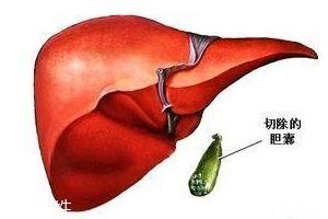 胆囊为何轻易长结石?与个别身分紧密亲密相干