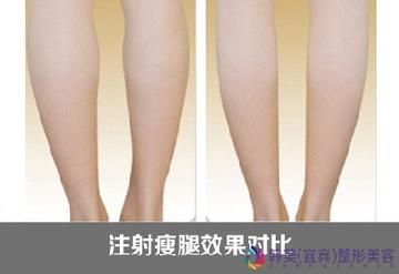 怎样才能瘦腿,女生在健身房怎样练才能瘦腿