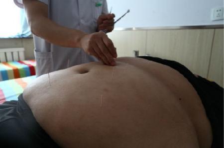 针灸减肥结果,减肥的针灸医治结果缩略图