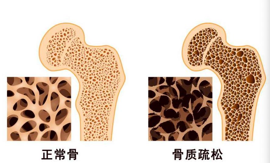 专家:防治骨质松散应从青少年期间起头插图